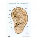 Mapa Acupuntura Auricular