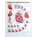 Pôster 3D de Doenças Cardiovasculares em Alto-Relevo