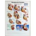 Pôster 3D Doenças do Coração em Alto-Relevo.